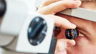 melanoma occhio