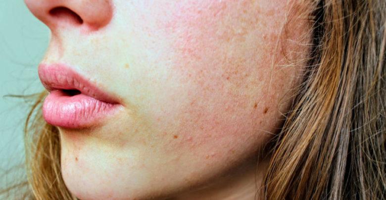 rubrica del benessere - pelle secca